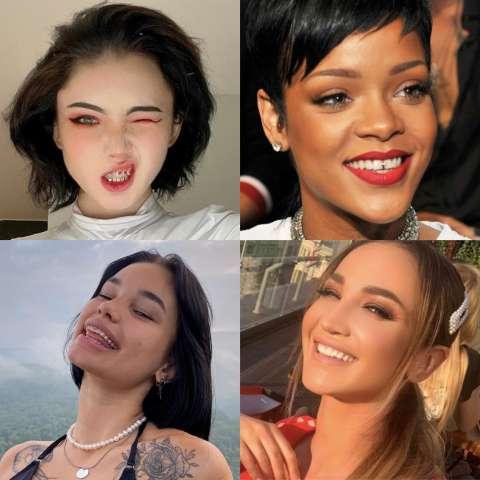 Звёздный тренд: блестяшки на зубы